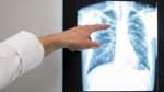 Tuberkulose muss man international bekämpfen