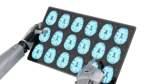 Künstliche Intelligenz könnte die Radiologie revolutionieren